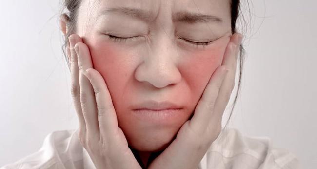 wajah memerah karena kulit sensitif